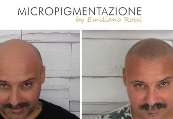 when to opt for hair tattooing tricopigmentation